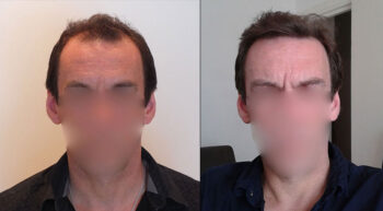 Hair Transplant Before and After 2500 Graft 6000 Hair