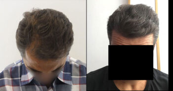 Hair Transplant Before and After 2600 Graft 6000 Hair