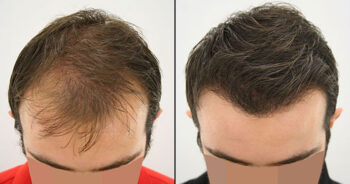 Hair Transplant Before and After 2700 Graft 5700 Hair