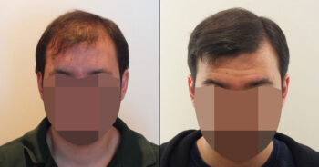 Hair Transplant Before and After 3100 Graft 7000 Hair