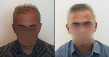 Hair Transplant Before and After 4600 Graft 10000 Hair