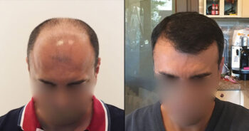 Hair Transplant Before and After 5000 Graft 10000 Hair